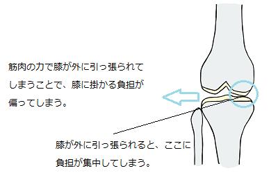 筋肉の力で膝が外に引っ張られてしまう様子を描いたイラスト