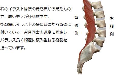 多裂筋が背骨と背骨を適度に固定し、脊柱をバランス良く綺麗に積み重ねている様子を説明しているイラスト