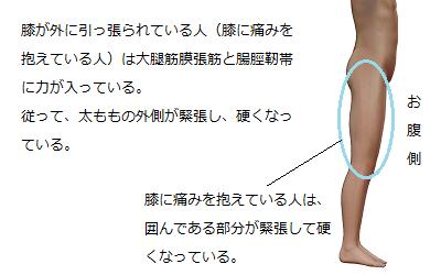 大腿筋膜張筋と腸脛靭帯に力が入っている人は、太もものどのあたりが硬くなっているのかを説明しているイラスト