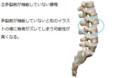 多裂筋が機能せず、背骨がずれてしまっている様子を説明しているイラスト