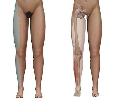 坐骨神経痛の痛む場所(太ももの前やや外側・下腿の前やや外側)と筋肉の相関関係を示したイラスト