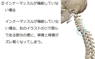 インナーマッスルが機能していない場合は、背骨がズレ易くなってしまうことを説明したイラスト