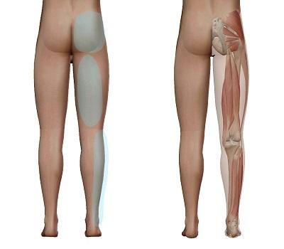 坐骨神経痛の時に痛む場所(お尻からふくらはぎにかけて)と筋肉の相関関係を示しているイラスト
