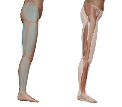 坐骨神経痛の時に痛む場所(お尻の横・太ももの横・ふくらはぎの横)と筋肉の相関関係を示したイラスト