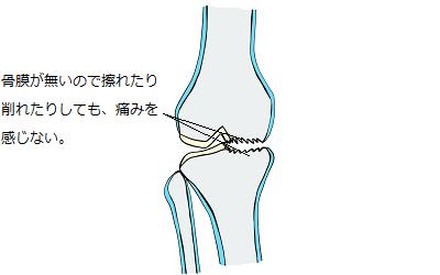 関節部に骨膜が無いので関節部には神経が無く、軟骨や軟骨の下に有る骨が削れても痛みは感じないということを表しているイラスト