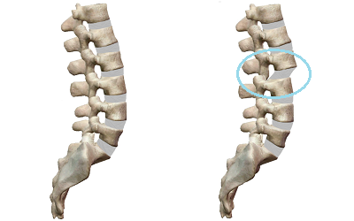正常な背骨とゆがんだ背骨を比較したイラスト