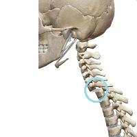 インナーマッスルが機能していない場合の背骨