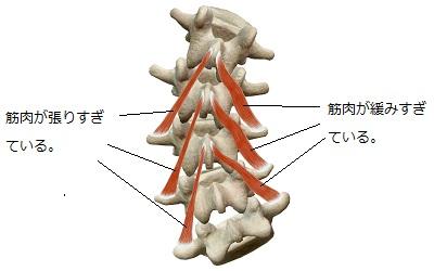 ゆがんだ背骨と張りすぎた筋肉・緩みすぎた筋肉