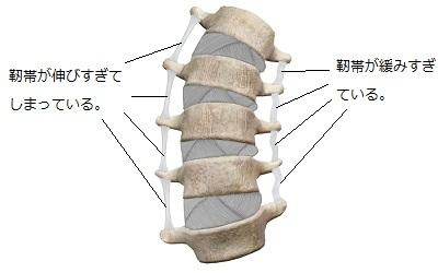 ゆがんだ背骨と伸びすぎた靭帯・緩みすぎた靭帯