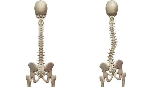 正常な背骨とゆがんだ背骨