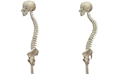 正常な背骨と猫背を比較したイラスト