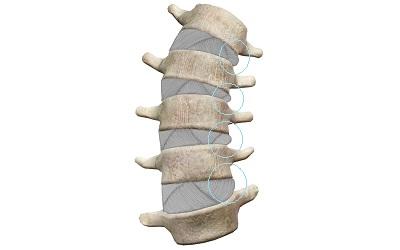 ゆがんだ背骨と潰れた椎間板