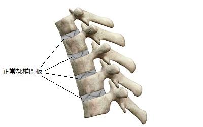 正常な椎間板