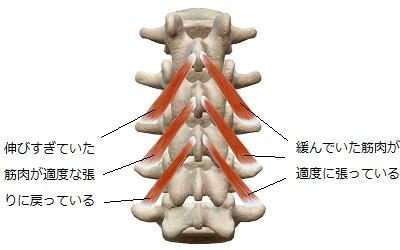 矯正を受けゆがみが取れたことで正常化した筋肉(インナーマッスル)
