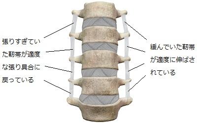 矯正をうけてゆがみが取れたことで正常化した靭帯