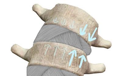 掛かる荷重が偏った状態の椎間板
