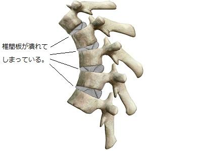 潰れてしまっている椎間板