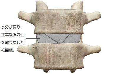 水分が戻り正常化した椎間板