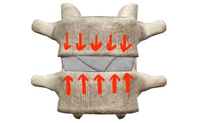荷重が掛かっている椎間板