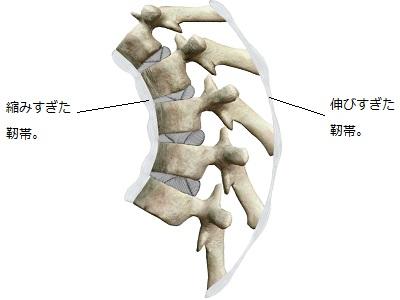 猫背の時の背骨の靭帯