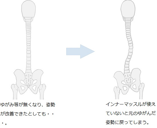 インナーマッスルが使えていない場合は姿勢を維持できない